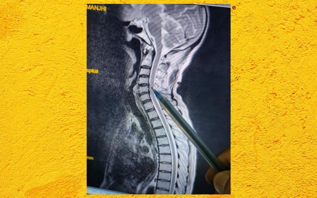 MND or Cervical Cord Compression Case