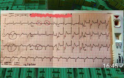 Is it Pulmonary Embolism or LMCA disease?