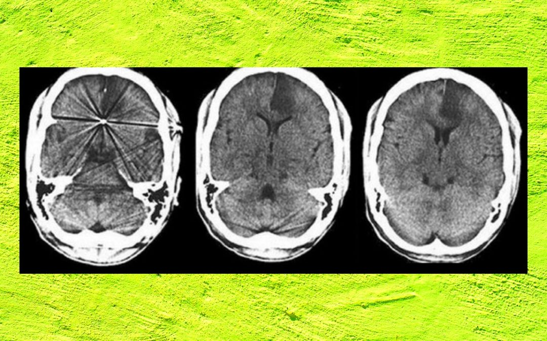 Young Doctor with Recurrent Stroke