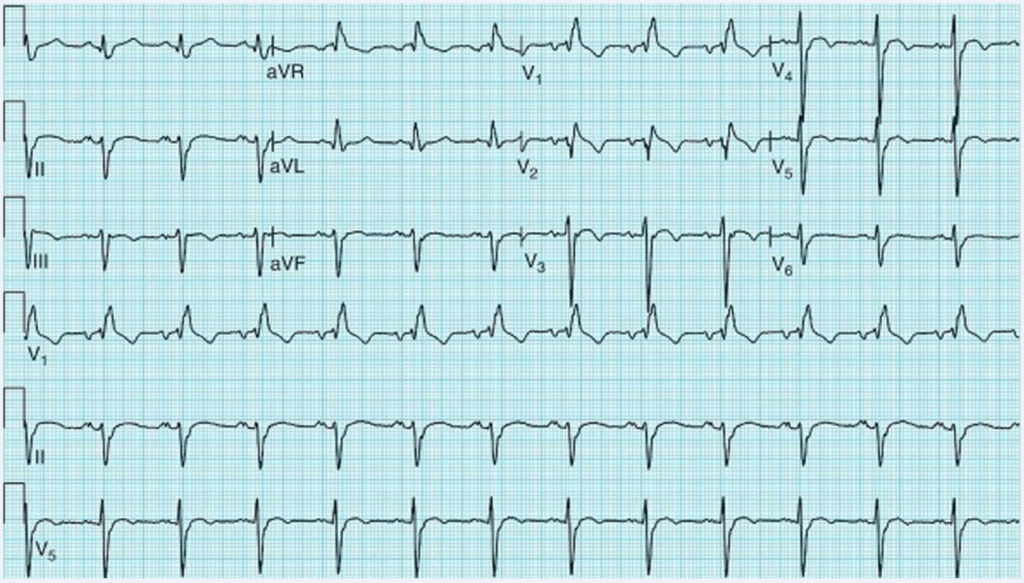 ECG - Resistant Hypertension