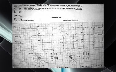 A young patient presented with acute onset LMN type of quadriparesis. Other vitals are WNL.