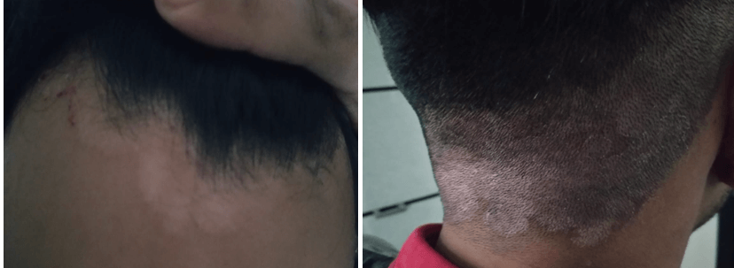Scalp Psoriasis Case