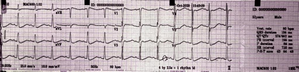 Acute onset flaccid quadriparesis ECG