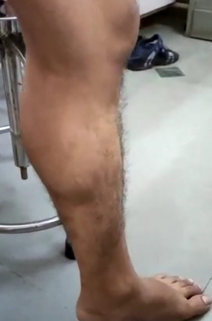 Calf Muscle of subject under study