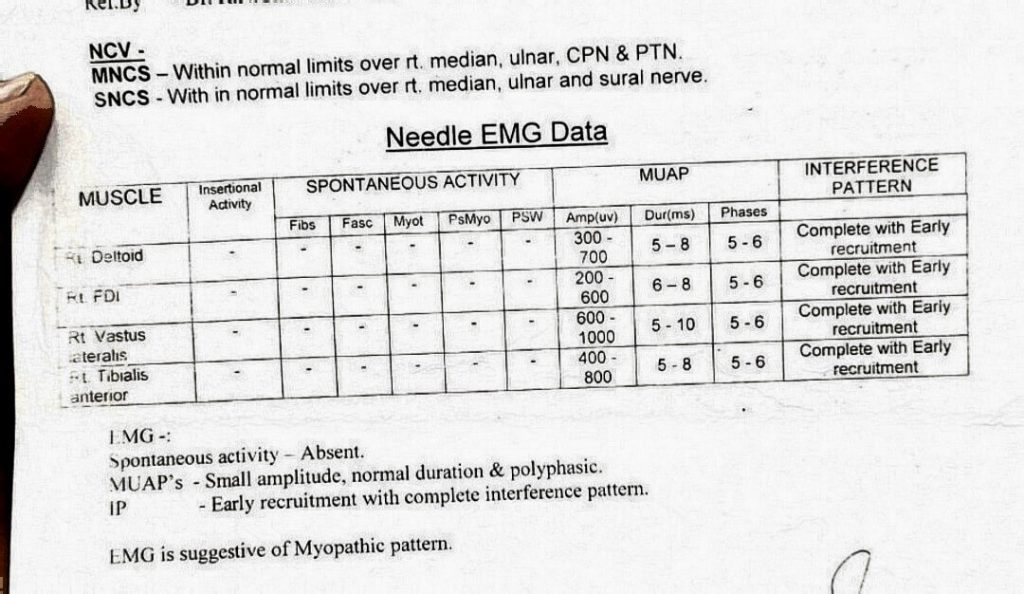 EMG of the subject