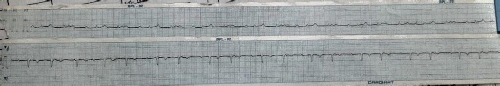 Heart Block ECG