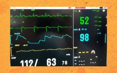 What kind of heart block is going on?