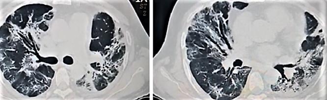 Post COVID fibrosis