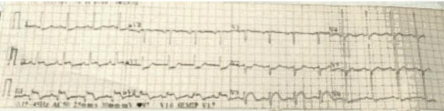 ECG Stent Thrombosis