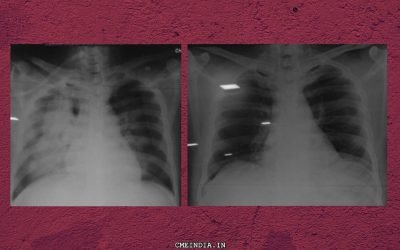 Right Lung Massive Opacity, SOB, Pyrexia and Raised Count: What could it be?