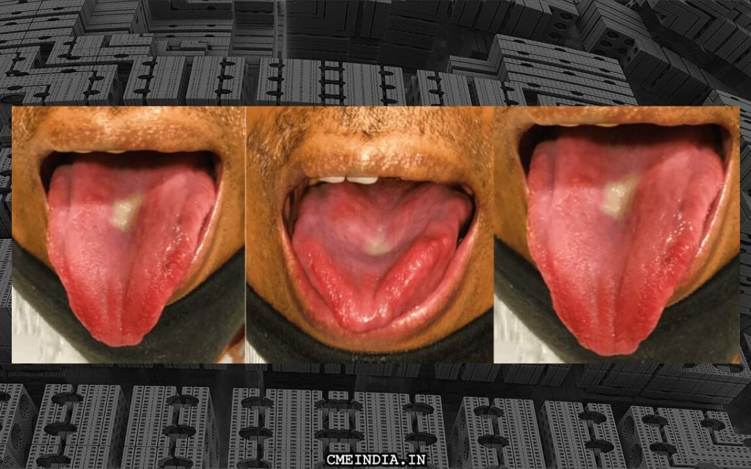 Rends on the sides of tongue