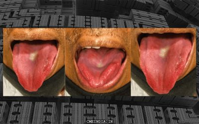 Redness on the sides of tongue, What is the diagnosis?