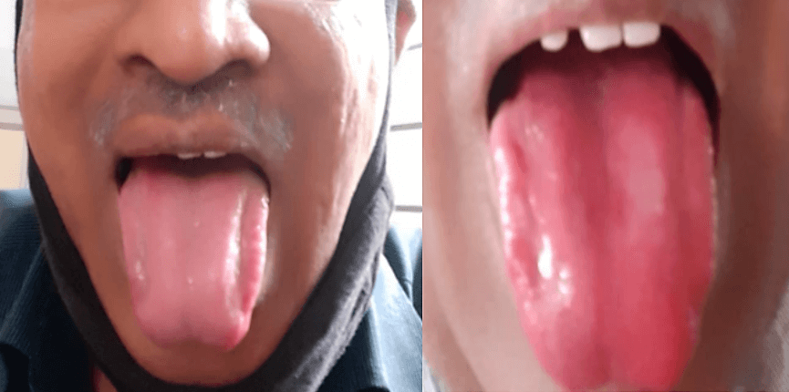 Rends on the sides of tongue - post treatment