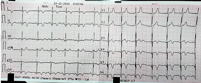 16-year-old boy with chest pain - ECG