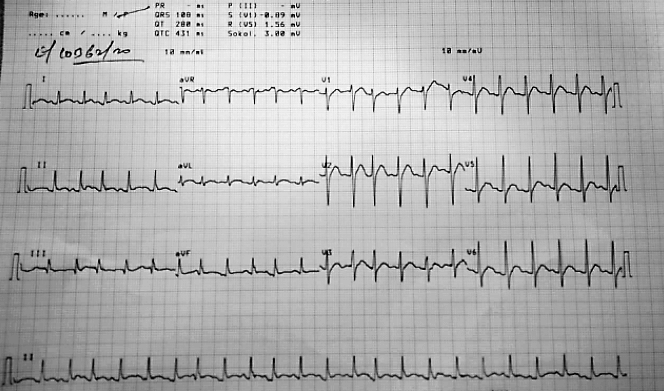 16-yr-old-chest-pain-ECG