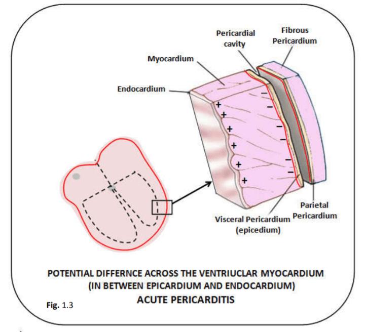 Acute Pericarditis