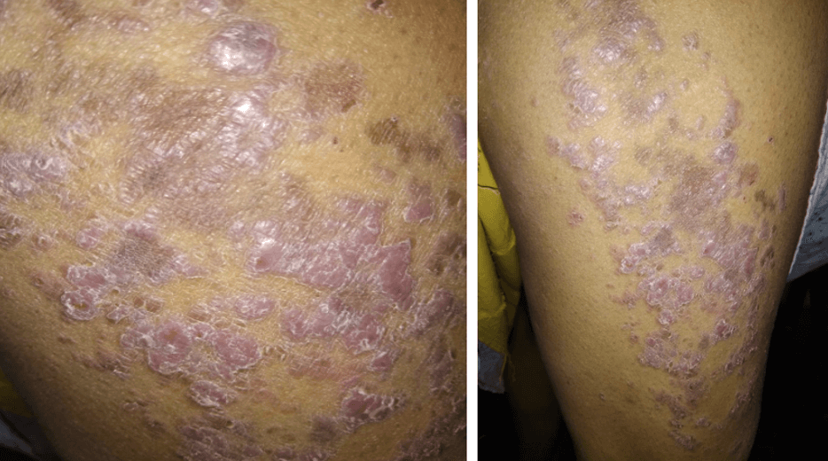 54yr. old with multiple symptoms