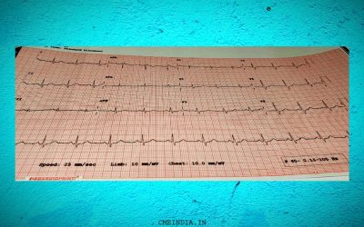 Recurrent Syncope with this ECG: How to Proceed?