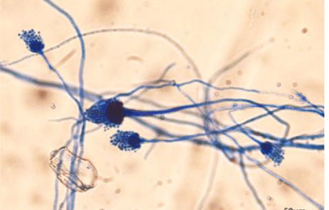 Aspergillus fumigatus under lactophenol cotton blue mount - 23-year-old with multiple symptoms