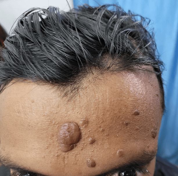 Male with skin lesions