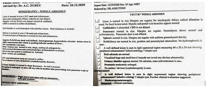 Phaeochromocytoma case