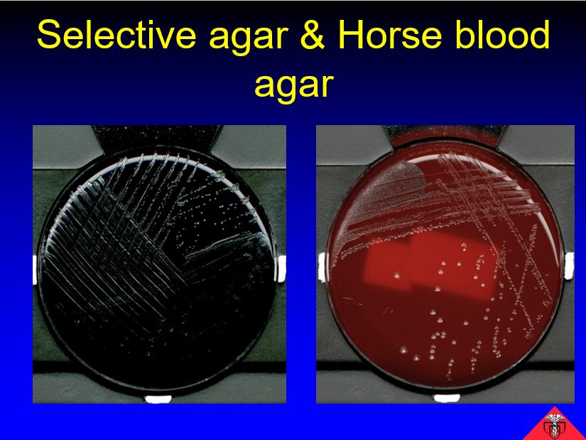 Selective agar and horse blood agar - Fever in returning traveler