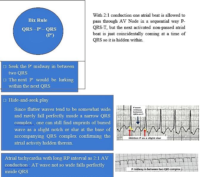 Bix Rule - SVT