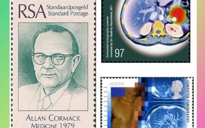 History Today in Medicine – Prof. Dr. Allan M. Cormack