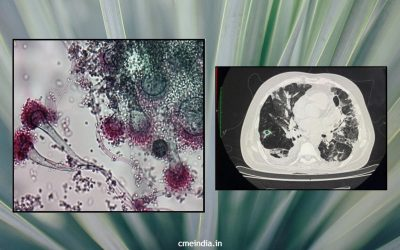 A 57-year-old male with post Covid progressive respiratory failure and fever