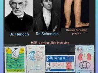 History Today in Medicine – Dr. Eduard Heinrich Henoch