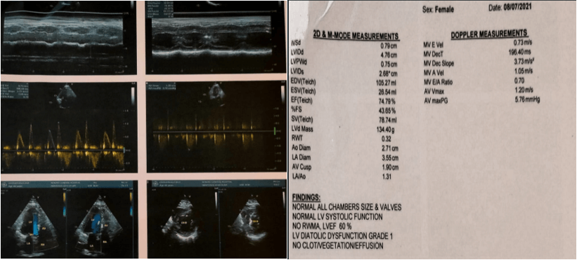 62-Year Female Came with Sudden Onset Giddiness and An Episode of Syncope