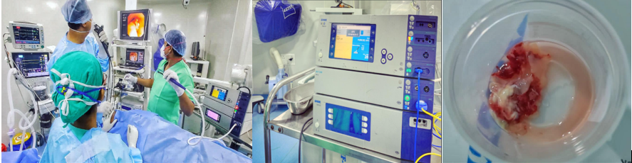 Endobronchial Mucormycosis Successfully Treated with Flexible Bronchoscopic Cryotherapy