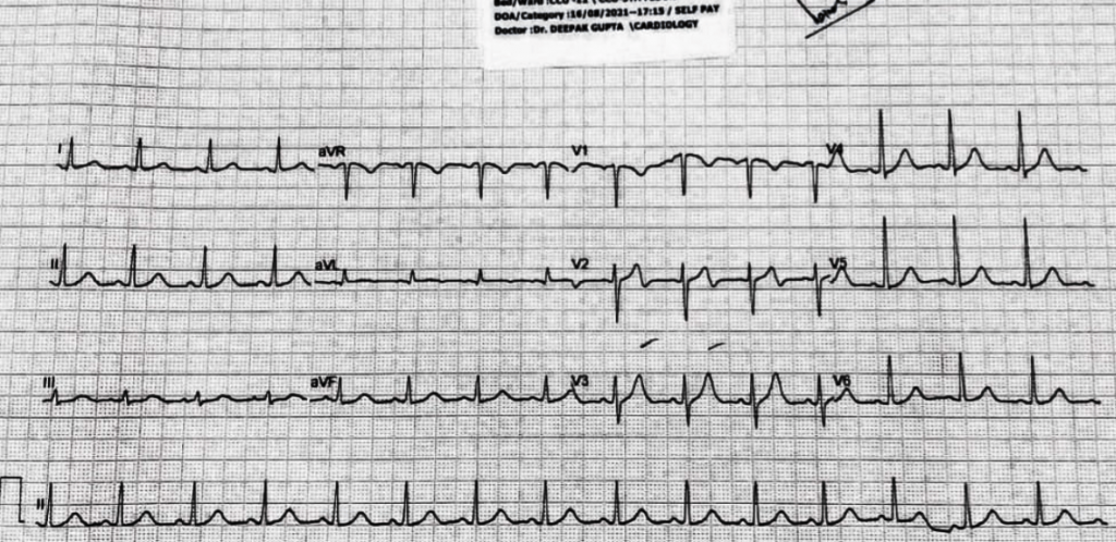 27 yr-old-male, (previously healthy) got admitted after electrocution