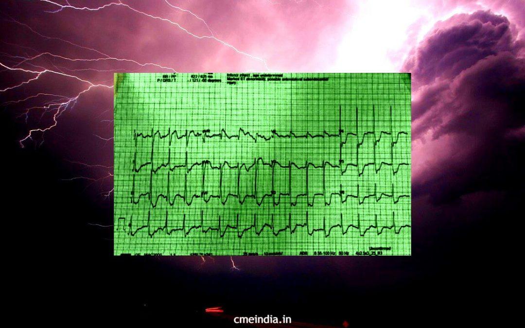 Electrocution case - CME INDIA