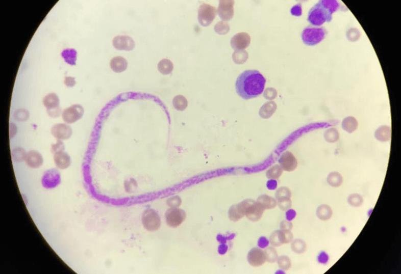 Microfilaria in Malignant Pleural Effusion