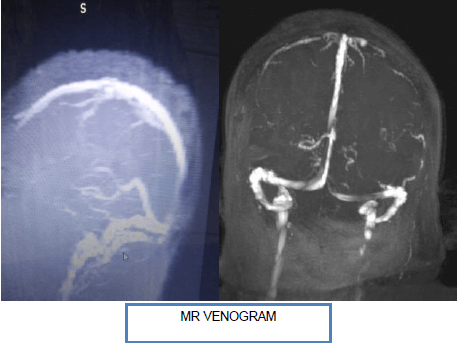 Multiple Cranial Nerve Palsy in A Non-Covid Case